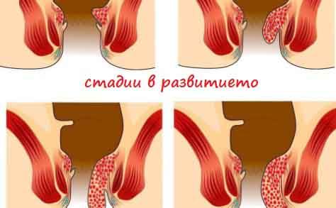 Хемороиди. 10+ билки и средства, които наистина работят!