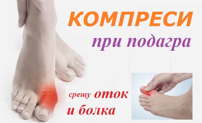 Подагра: Лечение с компреси, билки и др.